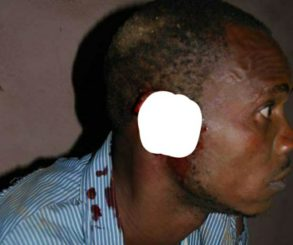 See What Happened To A Peacemaker's Ear While Trying To Separate A Fight During Birthday Party In Abia State