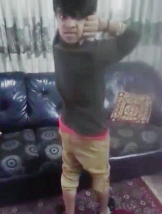 Young Boy Who Can Turn His Head 180 Degrees