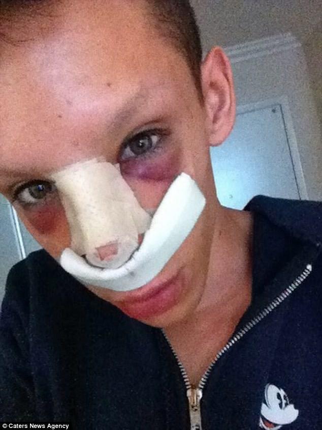 Vinny Ohh Spent $50K On Plastic Surgery To Transform Into Genderless Alien