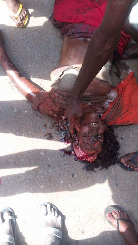 Graphic Pictures Of Car Crash Victims