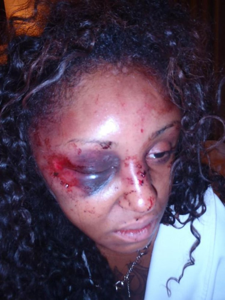 Instagram Model India Ali Who Was Beaten Up So Badly By Her IG Date James Baker That Her Brain Twisted Inside Her Skull 1