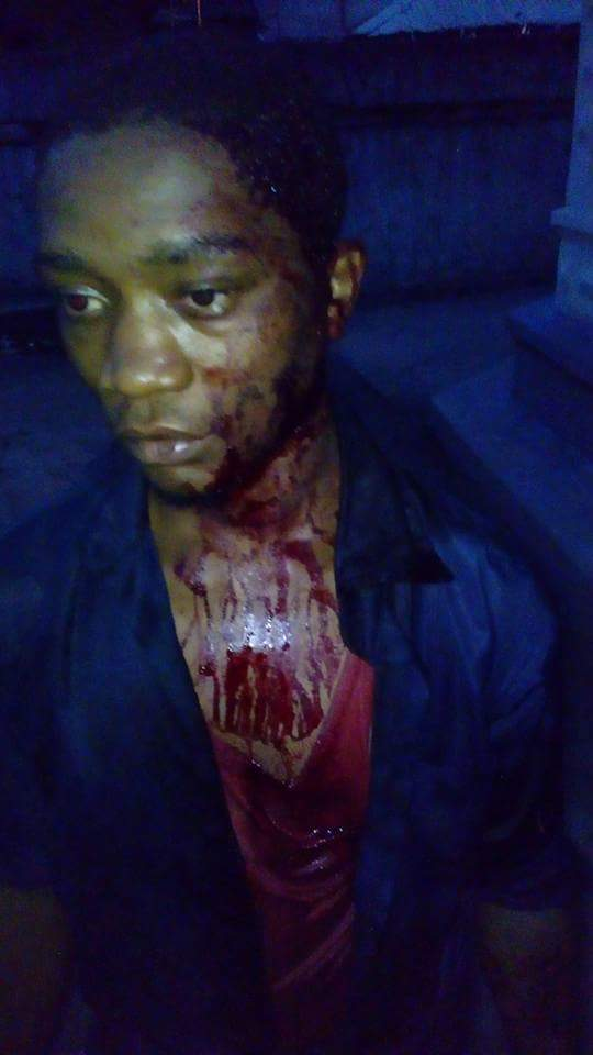 Vigilante Beat And Stabbed This Man With Broken Bottle In Onitsha