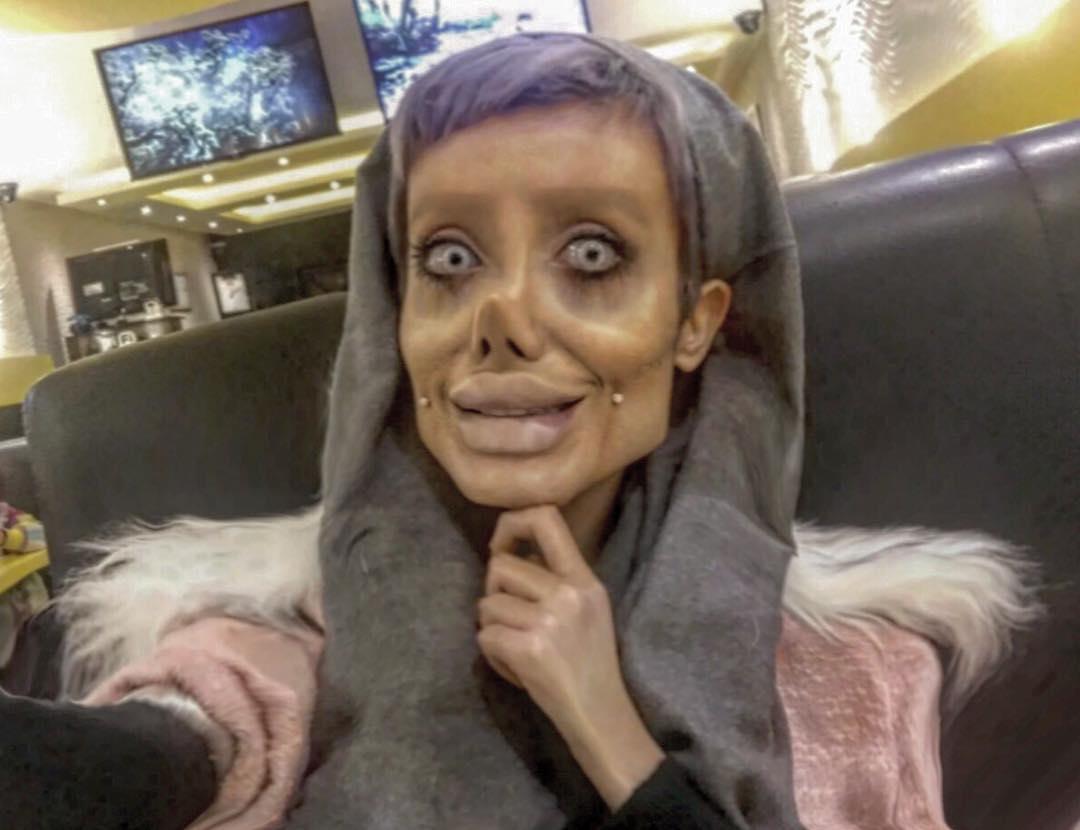 Iranian Teen Has Undergone 50 Surgeries To Look Like Her Idol Angelina Jolie (2)