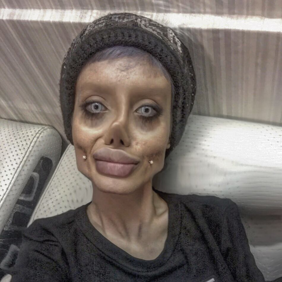 Iranian Teen Has Undergone 50 Surgeries To Look Like Her Idol Angelina Jolie (3)