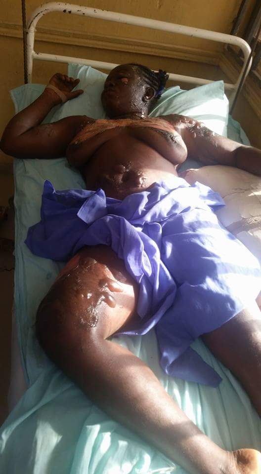 Man Poured Hot Boiling Oil On His Wife In Nasarawa State (3)
