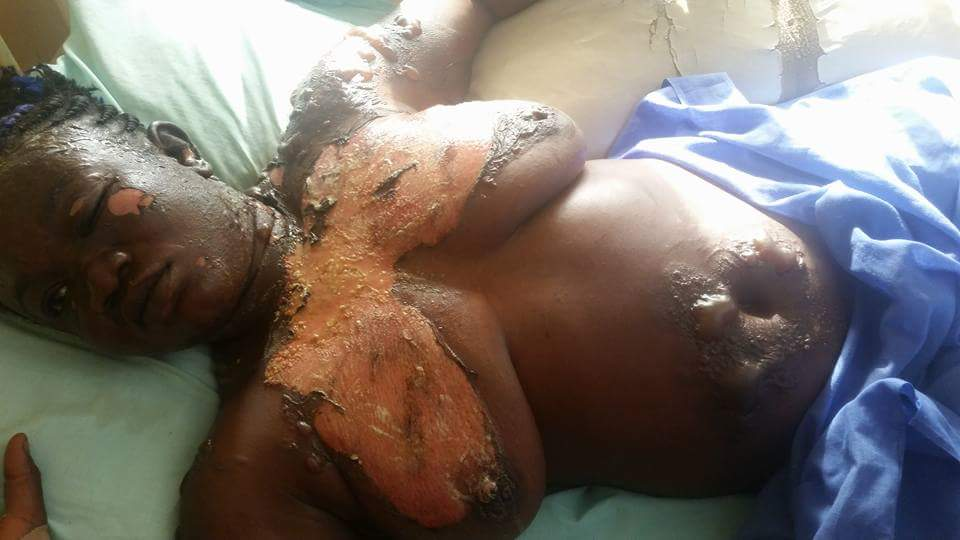 Man Poured Hot Boiling Oil On His Wife In Nasarawa State (2)