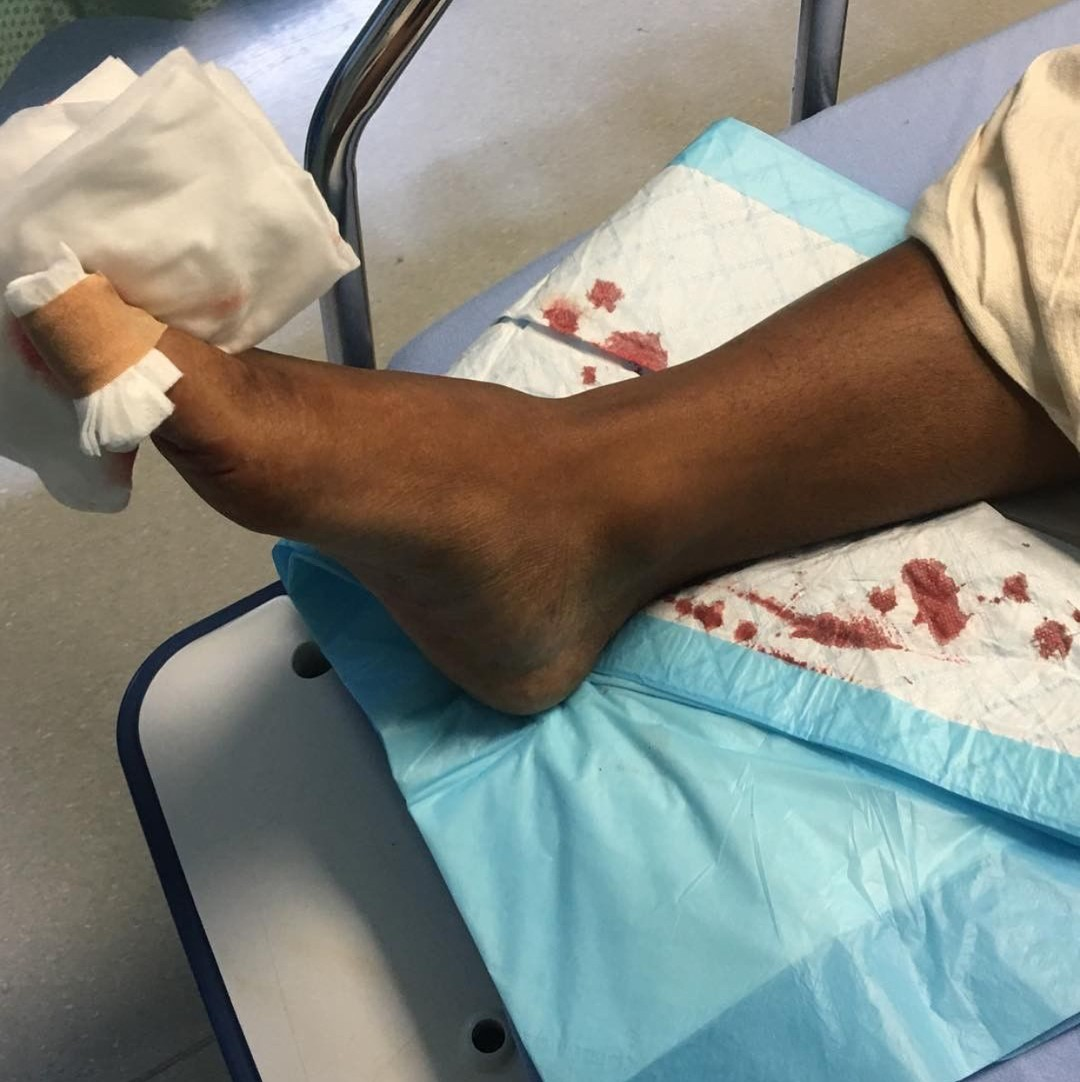Kevin McCall Shot In The Foot (2)