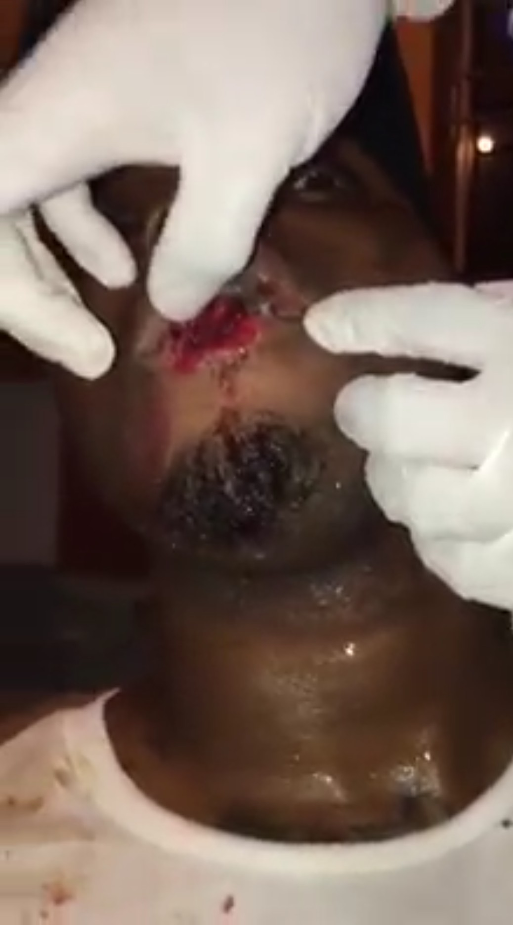 Nigerian Man Who Was Defending His Girlfriend From An Abuser Got His Lips Bitten (4)