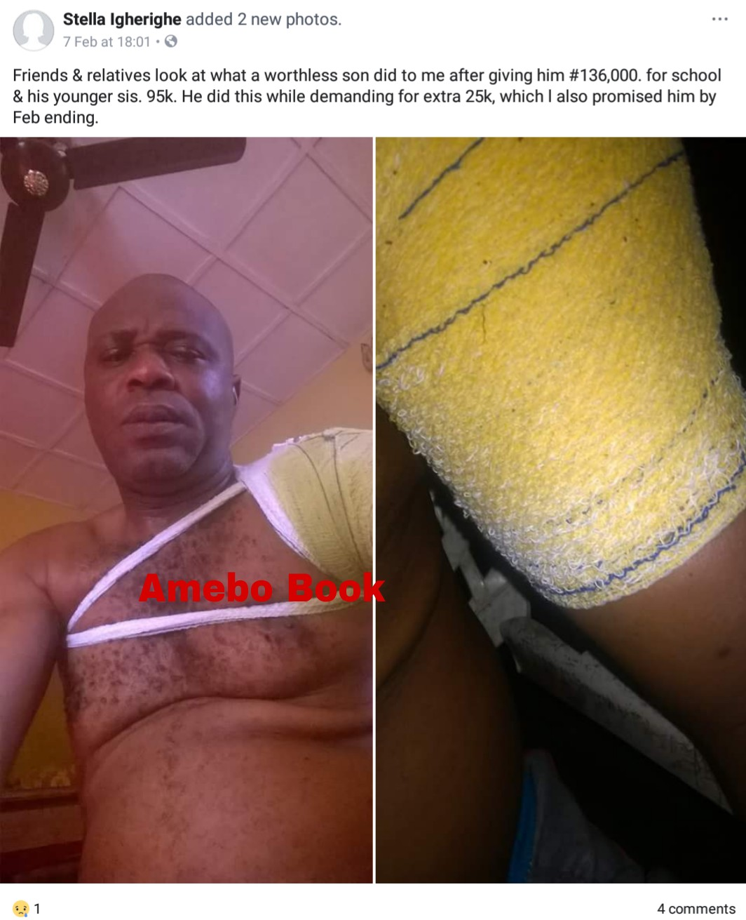 Nigerian Father Cries Out After Being Mercilessly Beaten Up By Son Over More Money (2)