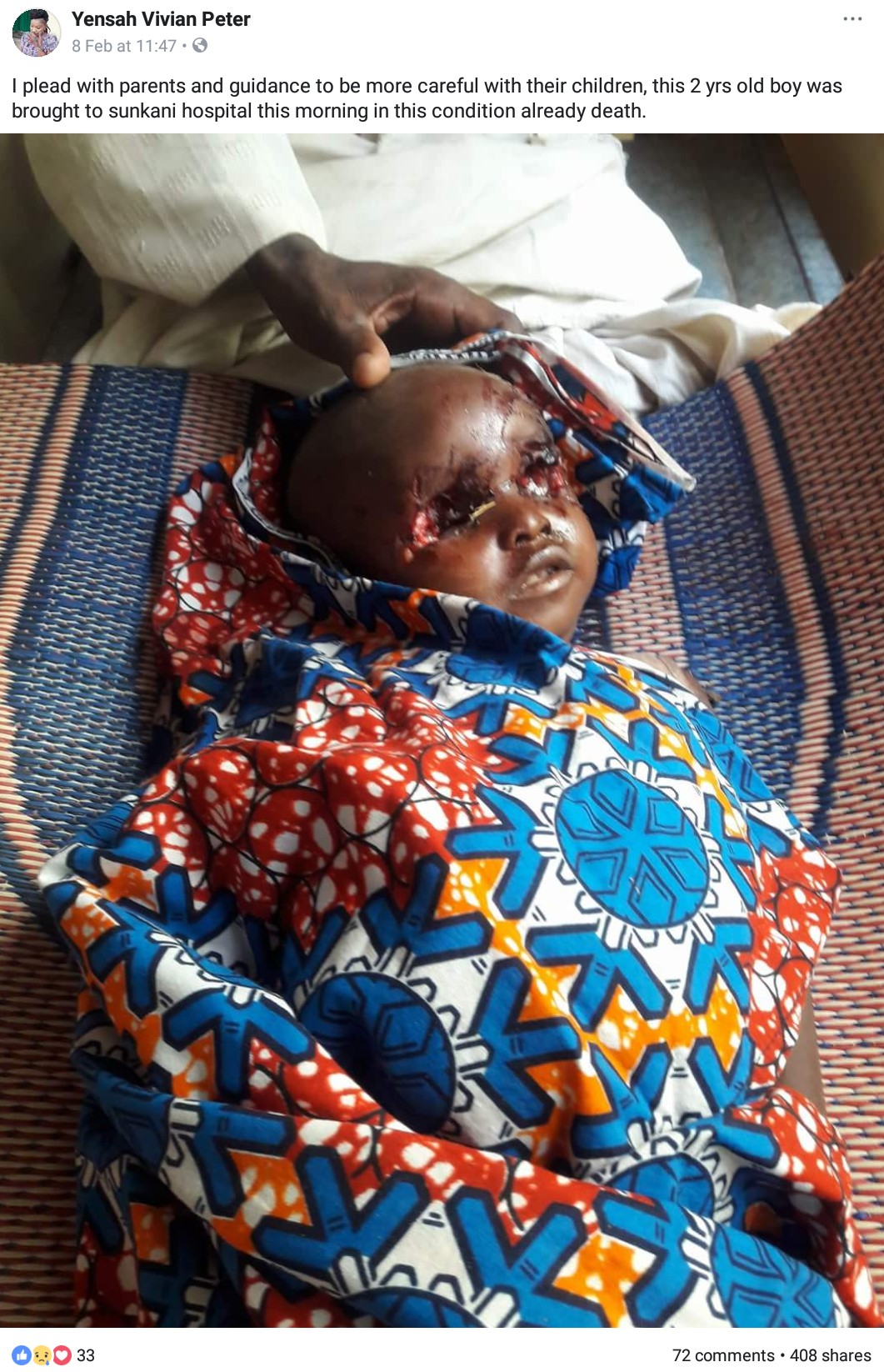 2-Year-Old Boy Whose Eyes Were Plucked Out By Ritualists In Jalingo (2)