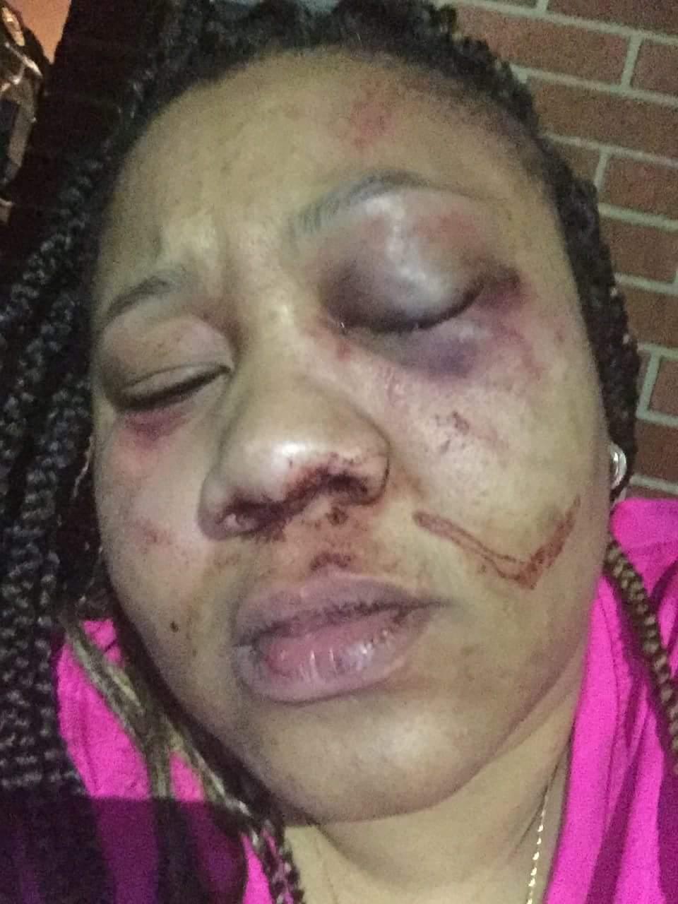 Pennsylvania Woman Janea Alston-Goggins Almost Beaten To Death By Her Fiance (3)
