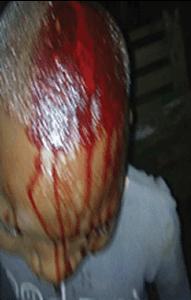 Man Breaks His 13-Year-Old Apprentice's Head With Padlock (2)