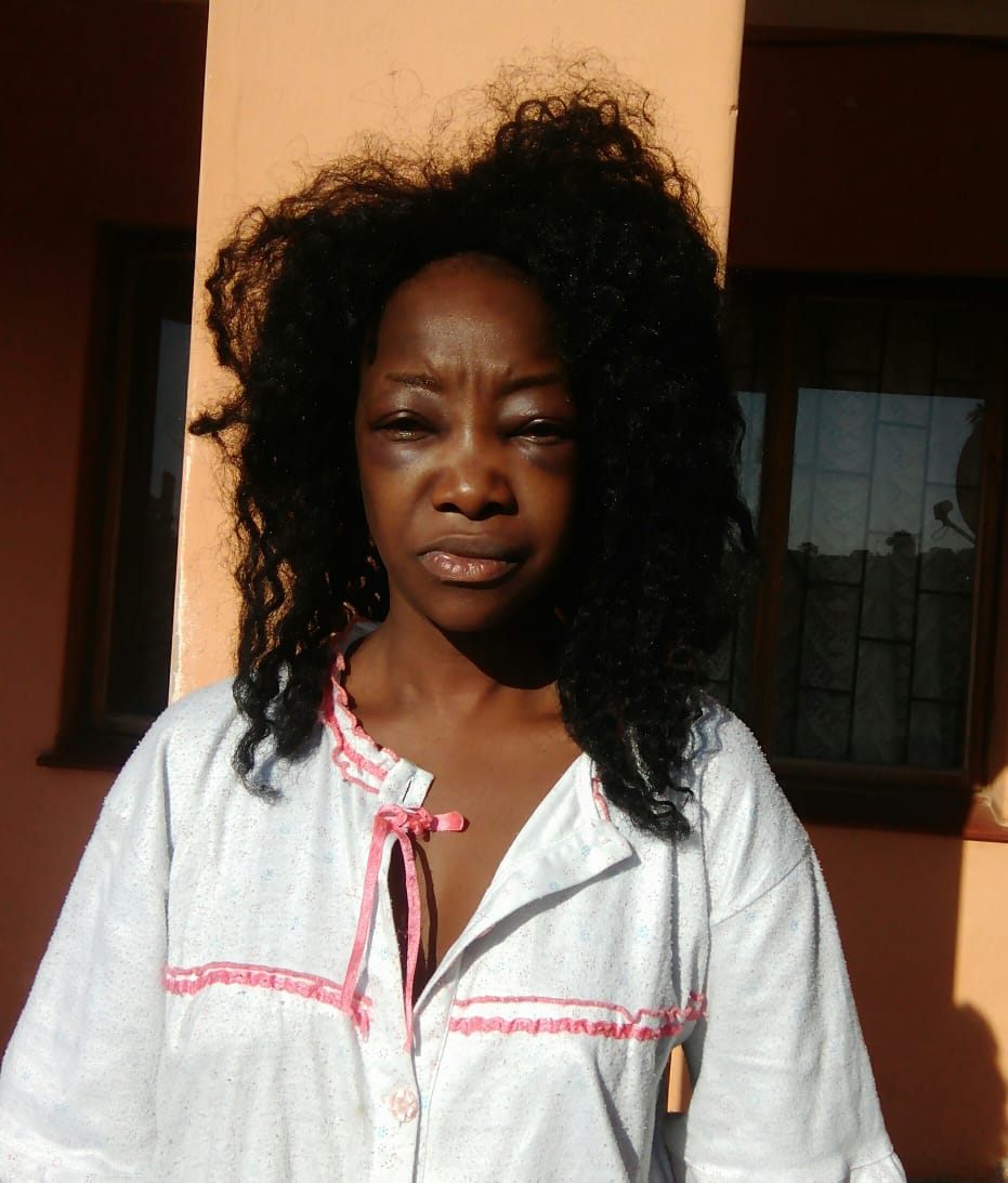Lady Almost Beaten To Death By Taxify Driver In South Africa (6)