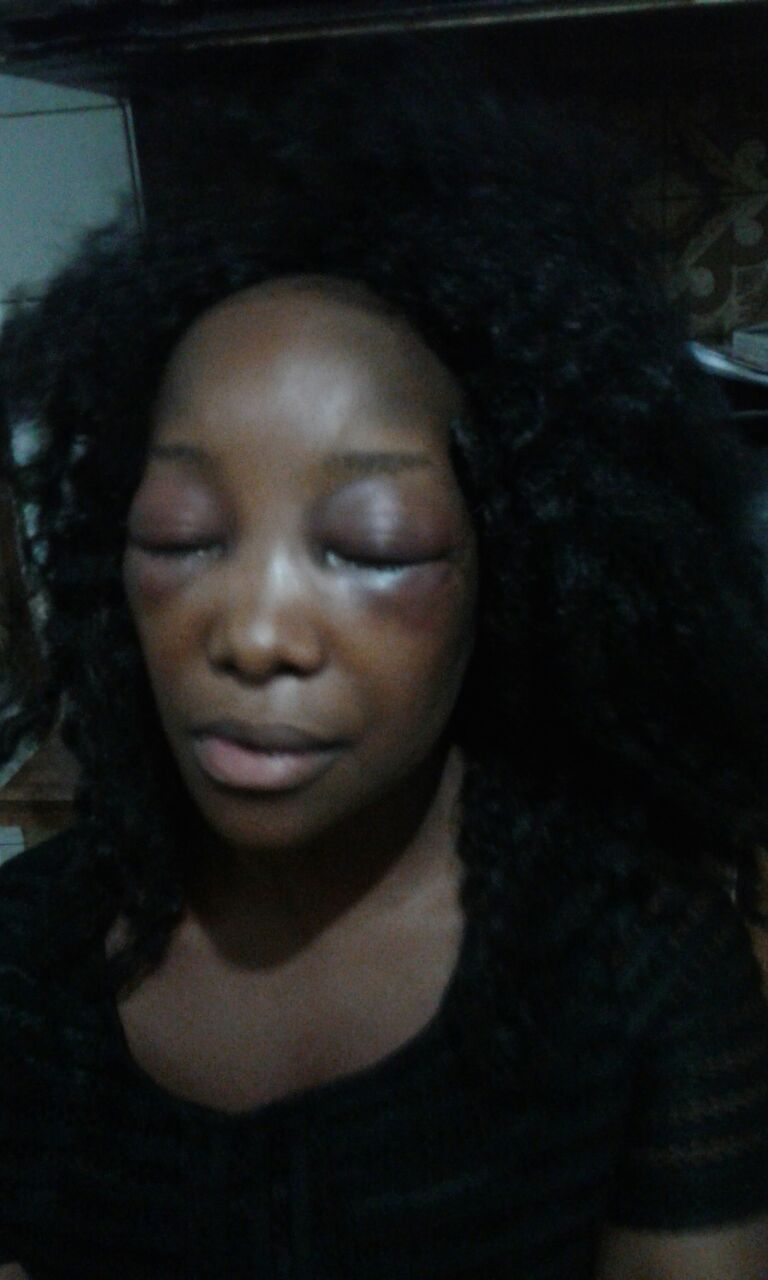 Lady Almost Beaten To Death By Taxify Driver In South Africa (7)