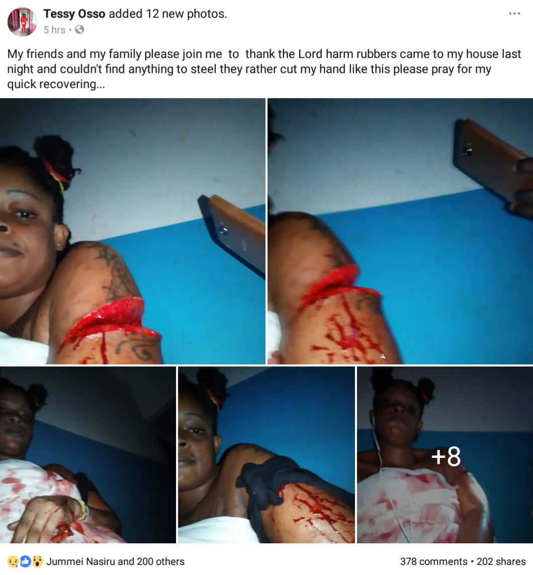 Armed Robbers Almost Cut Off Completely Lady's Hand After They Found Nothing To Steal (3)