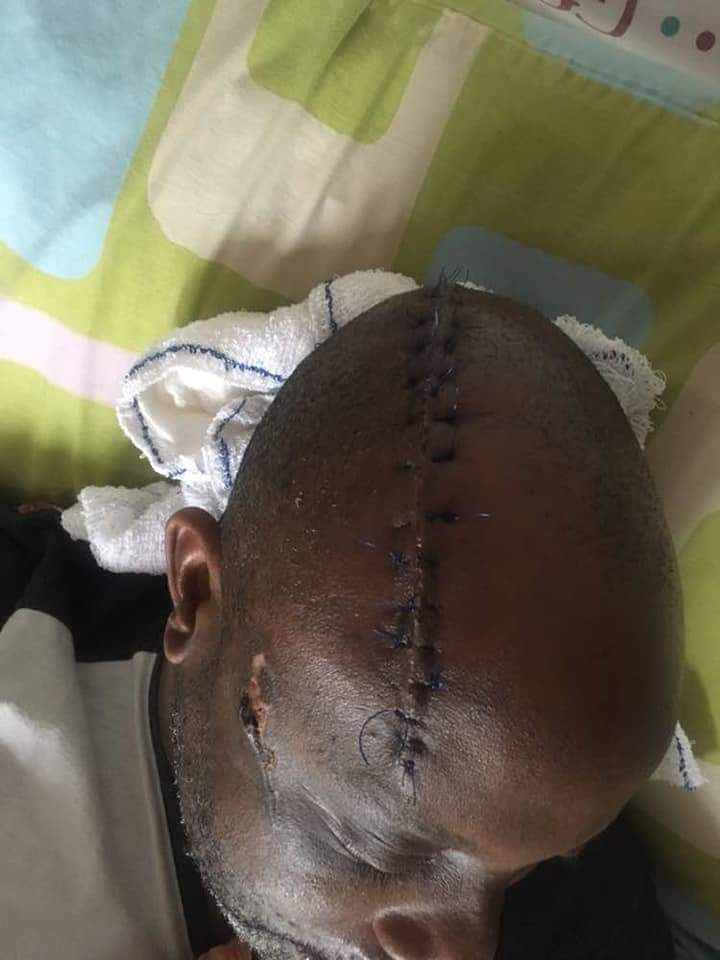 Man Who Survived Assassination Attempt By His Security Guard