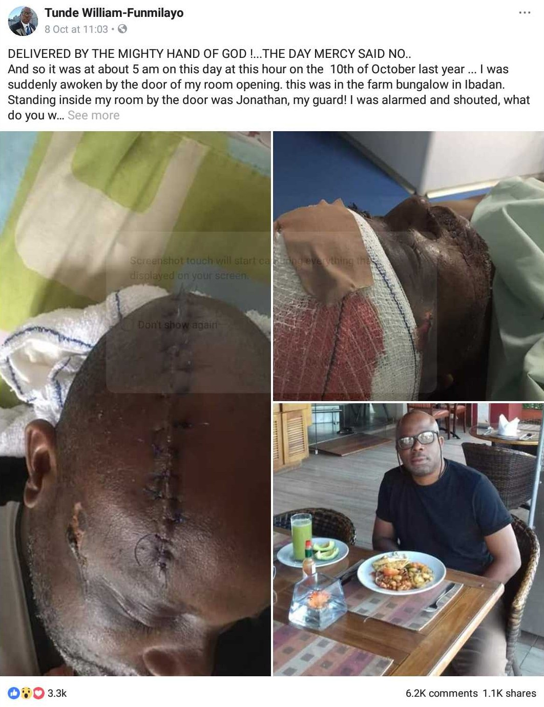 Man Who Survived Assassination Attempt By His Security Guard (2)